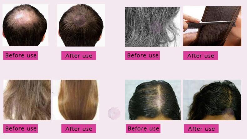 Hair Growth Essential Oil