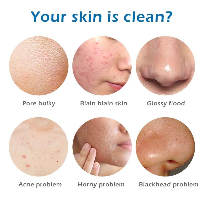 Acne Treatment Sea Salt Soap